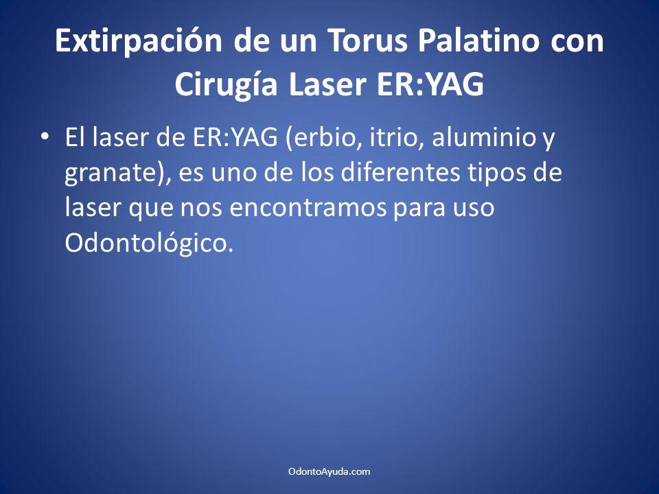 Extirpación de un Torus Palatino con Cirugía Laser ER:YAG El laser de ER:YAG (erbio, itrio, aluminio y granate), es uno de los diferentes tipos de las