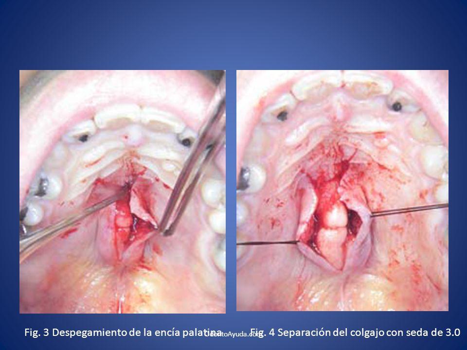 Fig. 3 Despegamiento de la encía palatinaFig. 4 Separación del colgajo con seda de 3.0 OdontoAyuda.com