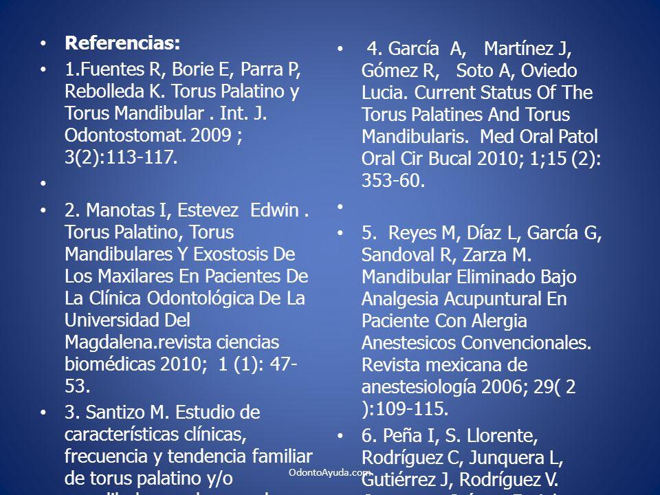 Referencias: 1.Fuentes R, Borie E, Parra P, Rebolleda K. Torus Palatino y Torus Mandibular. Int. J. Odontostomat. 2009 ; 3(2):113-117. 2. Manotas I, E