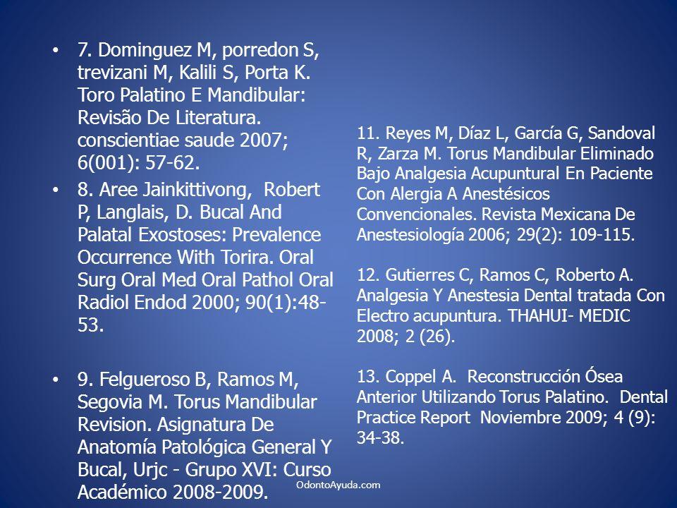 7. Dominguez M, porredon S, trevizani M, Kalili S, Porta K. Toro Palatino E Mandibular: Revisão De Literatura. conscientiae saude 2007; 6(001): 57-62.