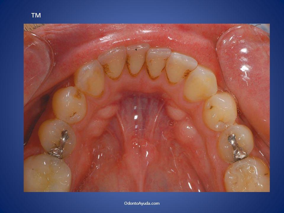 Fig. 7. Hemostasia producida por el Er:yag Fig. 8. Regularización del tejido óseo. OdontoAyuda.com