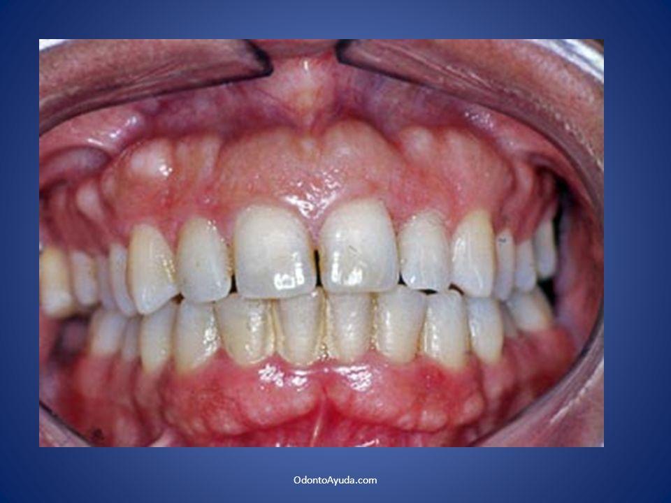 La muestra 960 pacientes tailandeses Clínica de Diagnóstico Oral de la Facultad de Odontología de la Universidad de Chulalongkom.