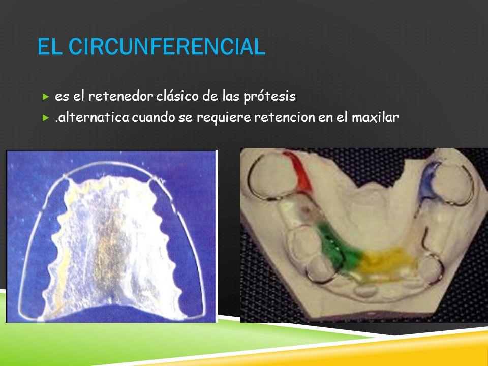EL CIRCUNFERENCIAL es el retenedor clásico de las prótesis.alternatica cuando se requiere retencion en el maxilar
