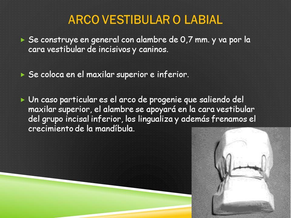 ARCO VESTIBULAR O LABIAL Se construye en general con alambre de 0,7 mm.