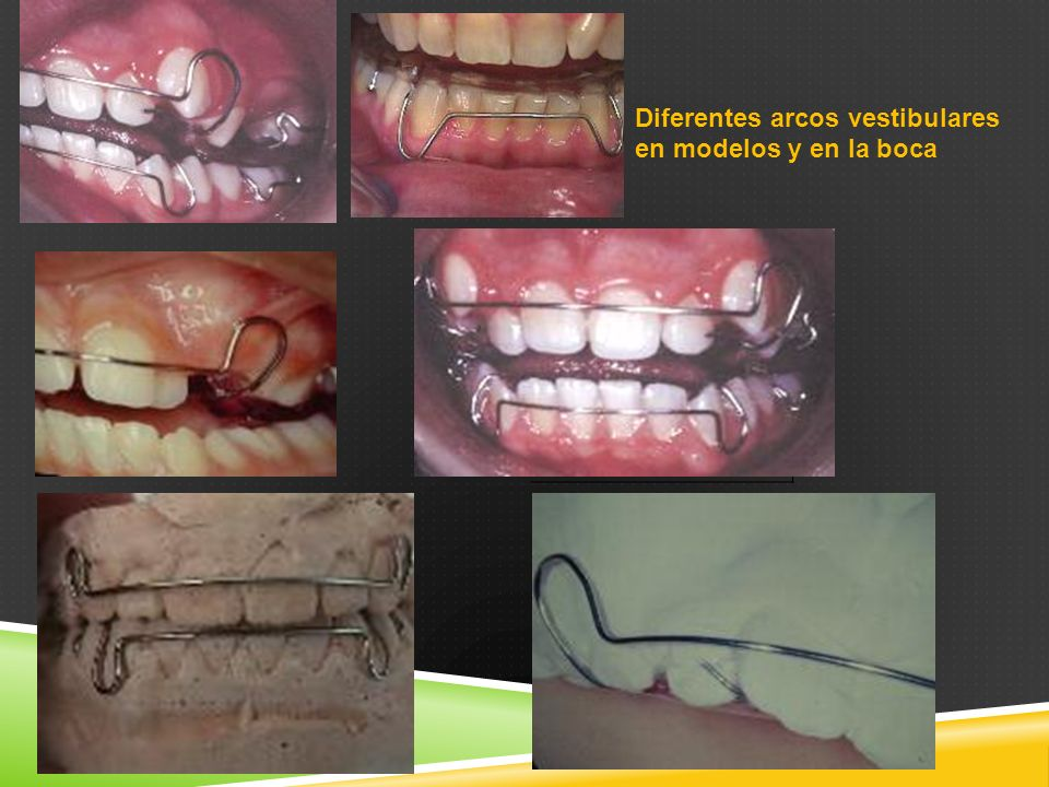Diferentes arcos vestibulares en modelos y en la boca