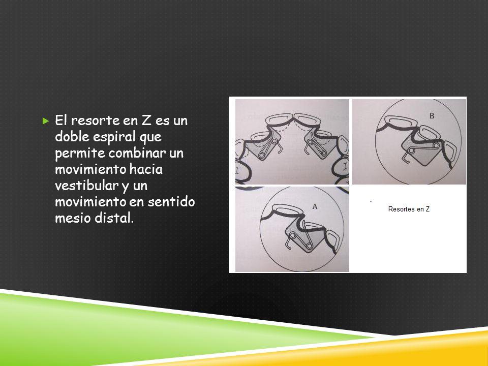El resorte en Z es un doble espiral que permite combinar un movimiento hacia vestibular y un movimiento en sentido mesio distal.