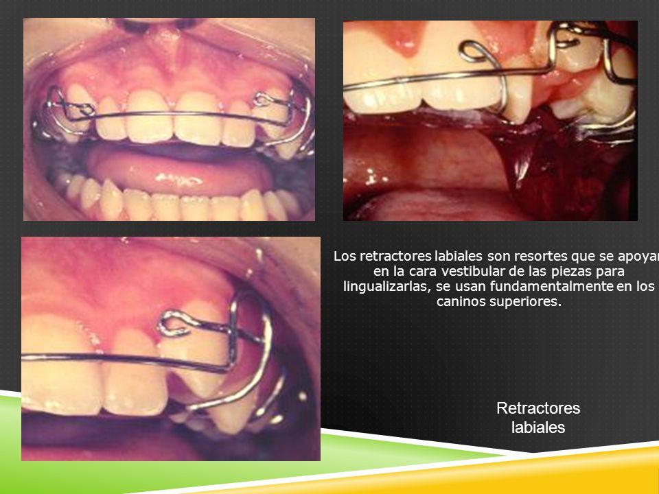 Retractores labiales Los retractores labiales son resortes que se apoyan en la cara vestibular de las piezas para lingualizarlas, se usan fundamentalmente en los caninos superiores.