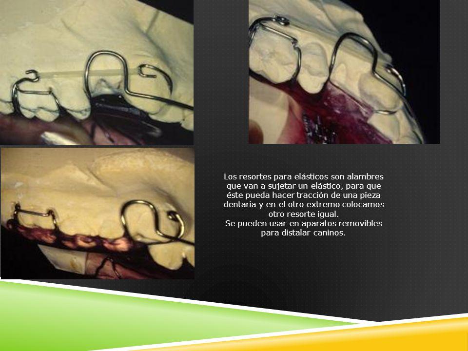Los resortes para elásticos son alambres que van a sujetar un elástico, para que éste pueda hacer tracción de una pieza dentaria y en el otro extremo colocamos otro resorte igual.