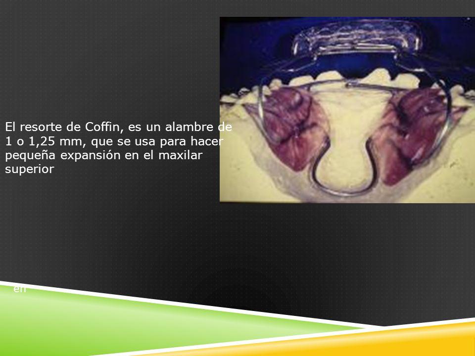 en El resorte de Coffin, es un alambre de 1 o 1,25 mm, que se usa para hacer pequeña expansión en el maxilar superior