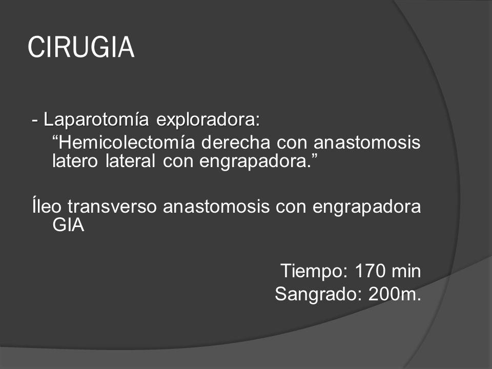 CIRUGIA - Laparotomía exploradora: Hemicolectomía derecha con anastomosis latero lateral con engrapadora.