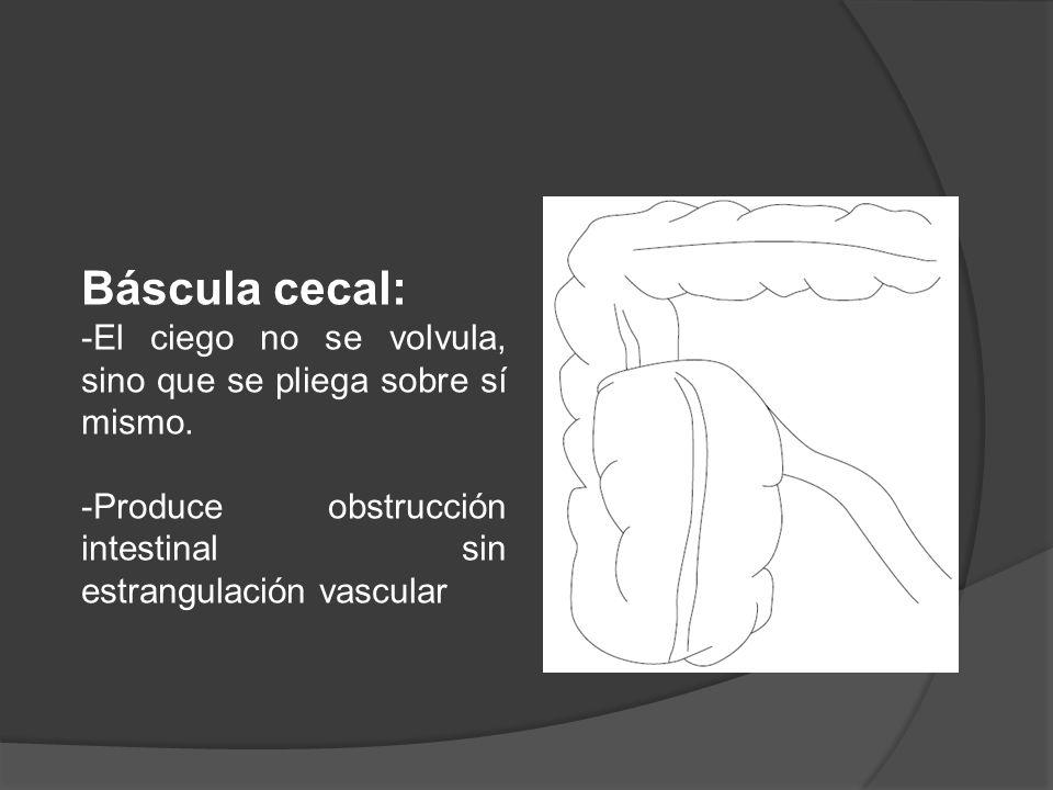 Báscula cecal: -El ciego no se volvula, sino que se pliega sobre sí mismo.