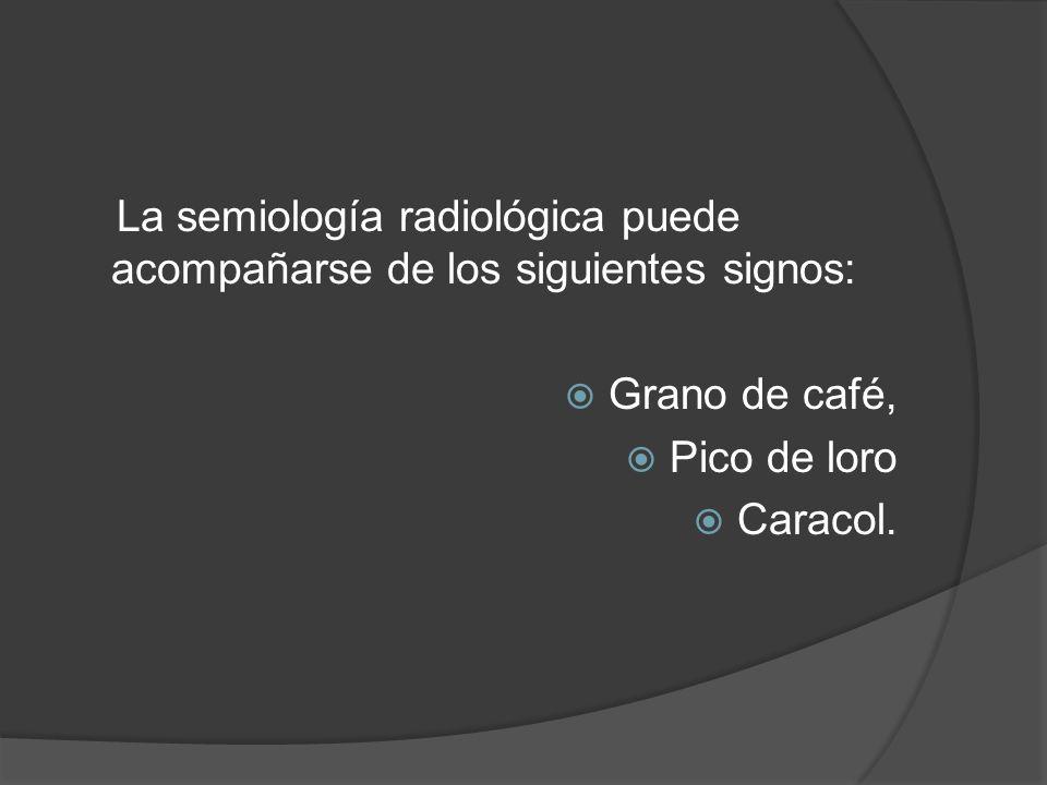 La semiología radiológica puede acompañarse de los siguientes signos: Grano de café, Pico de loro Caracol.