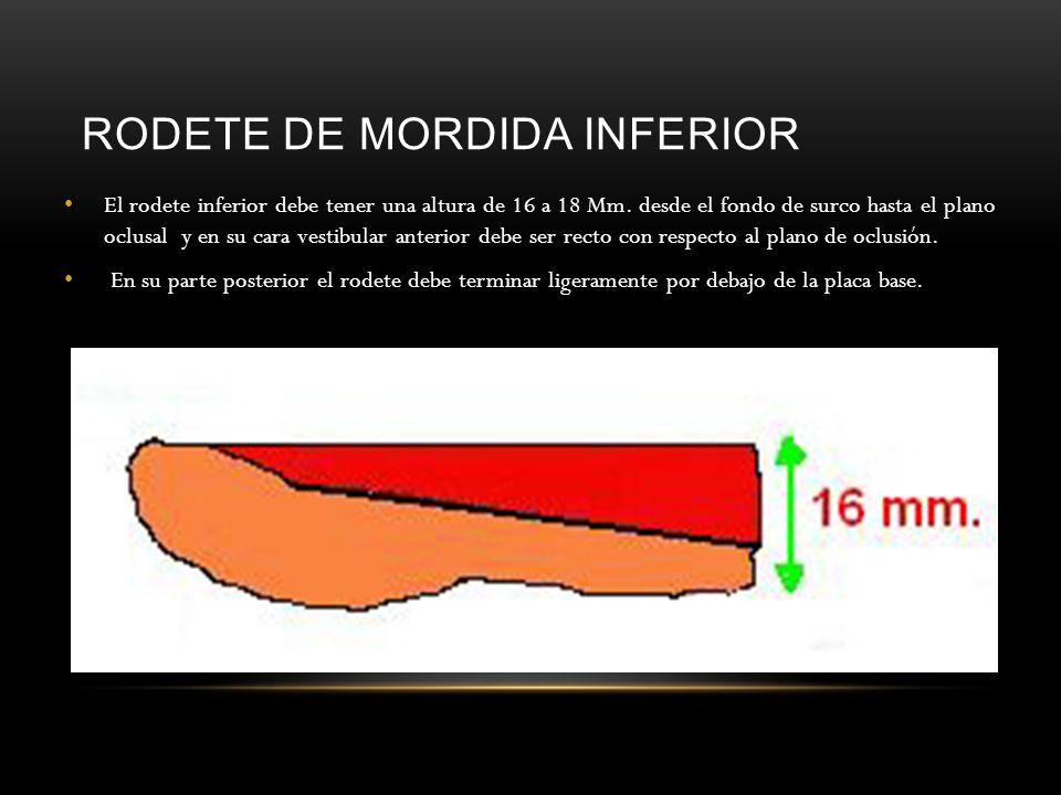RODETE DE MORDIDA INFERIOR El rodete inferior debe tener una altura de 16 a 18 Mm. desde el fondo de surco hasta el plano oclusal y en su cara vestibu