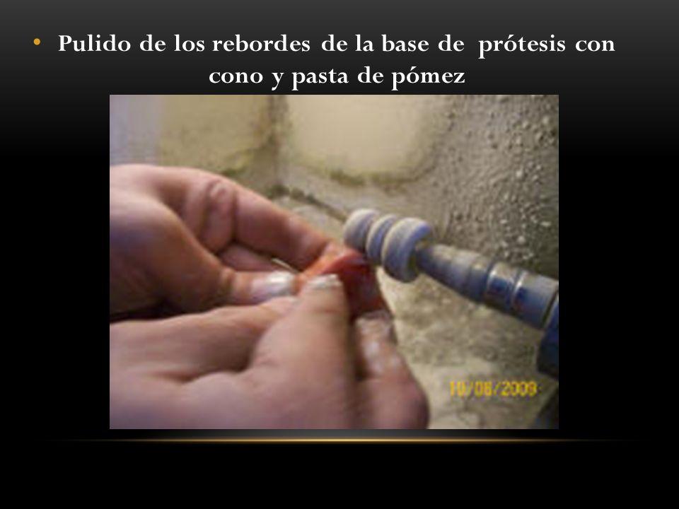 Pulido de los rebordes de la base de prótesis con cono y pasta de pómez