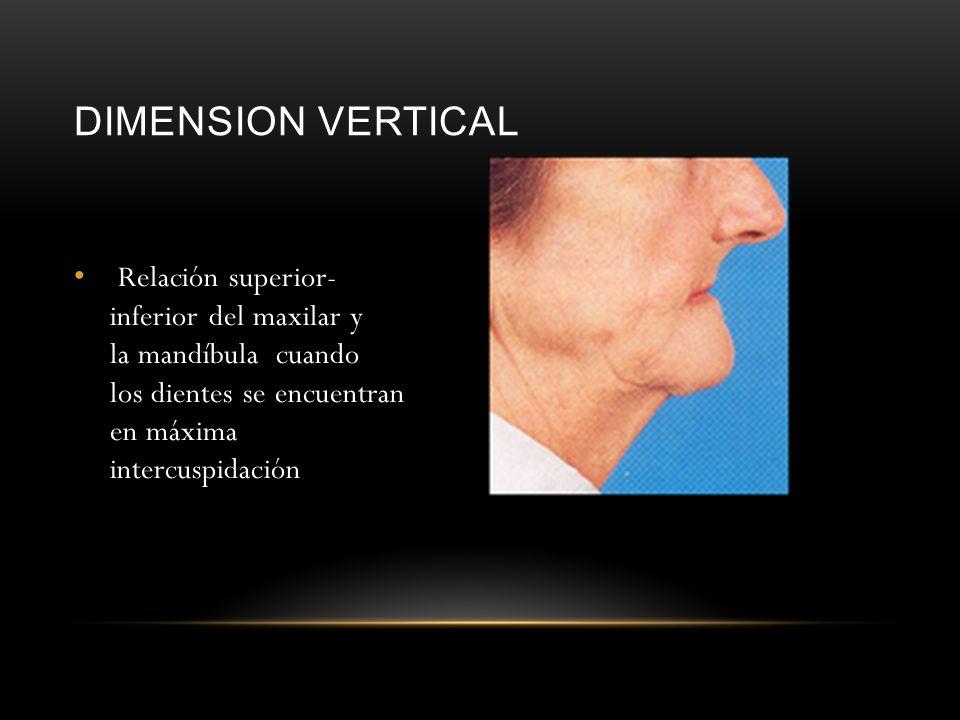 DIMENSION VERTICAL Relación superior- inferior del maxilar y la mandíbula cuando los dientes se encuentran en máxima intercuspidación