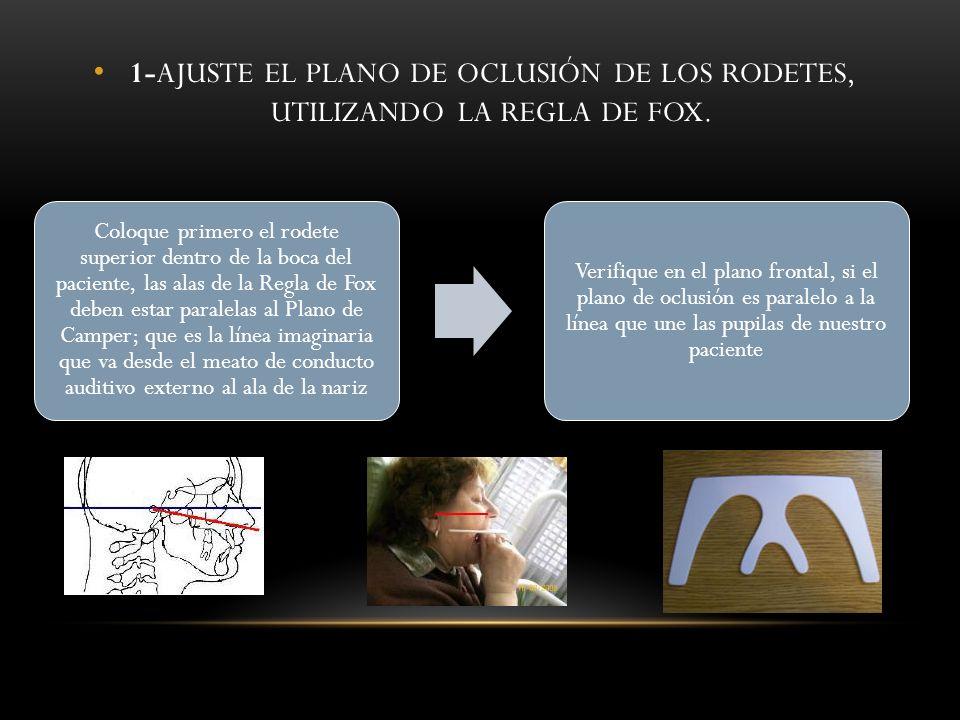 1-AJUSTE EL PLANO DE OCLUSIÓN DE LOS RODETES, UTILIZANDO LA REGLA DE FOX. Coloque primero el rodete superior dentro de la boca del paciente, las alas