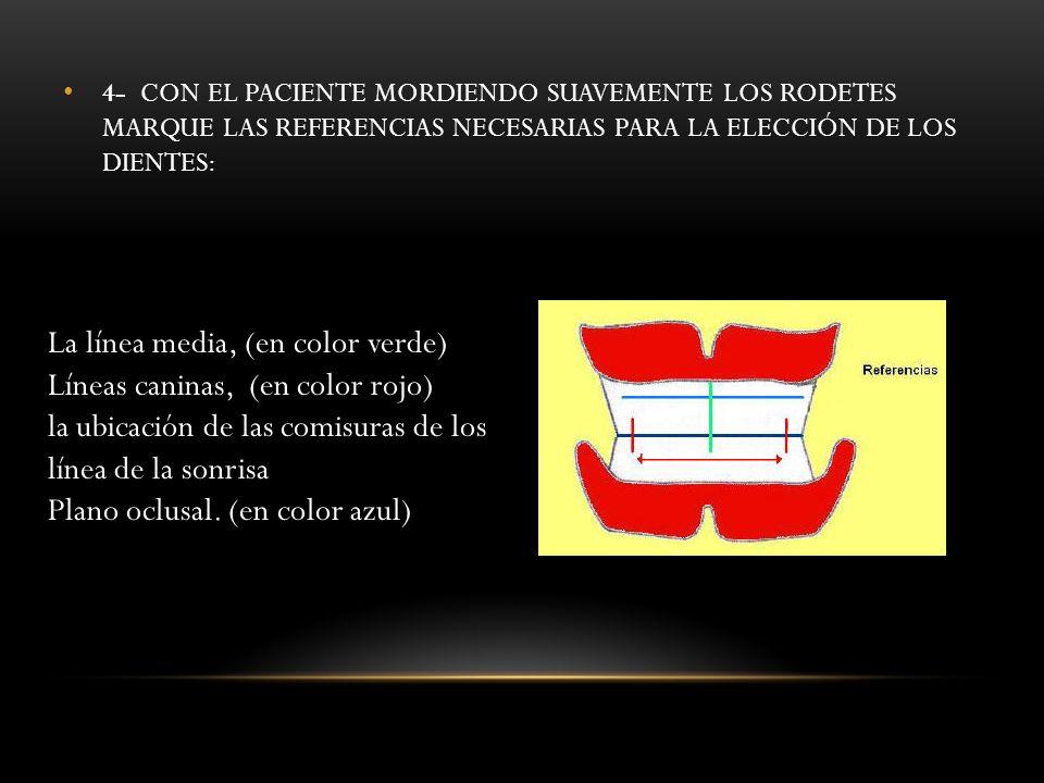4- CON EL PACIENTE MORDIENDO SUAVEMENTE LOS RODETES MARQUE LAS REFERENCIAS NECESARIAS PARA LA ELECCIÓN DE LOS DIENTES: La línea media, (en color verde