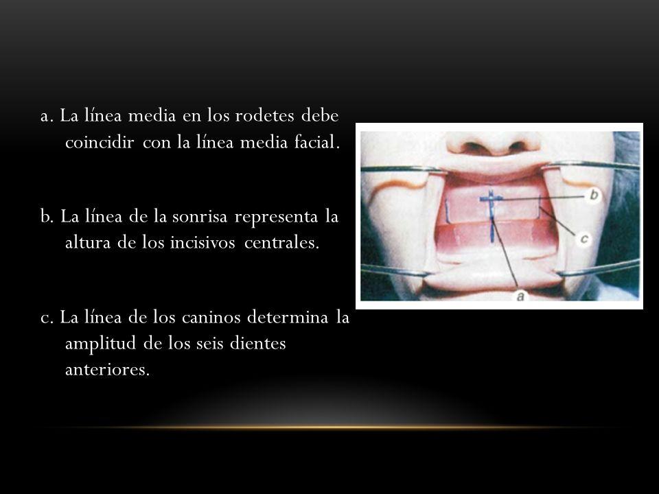 a. La línea media en los rodetes debe coincidir con la línea media facial. b. La línea de la sonrisa representa la altura de los incisivos centrales.
