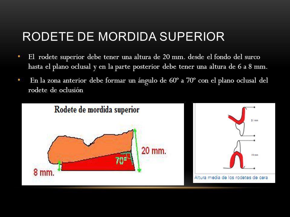 RODETE DE MORDIDA SUPERIOR El rodete superior debe tener una altura de 20 mm. desde el fondo del surco hasta el plano oclusal y en la parte posterior
