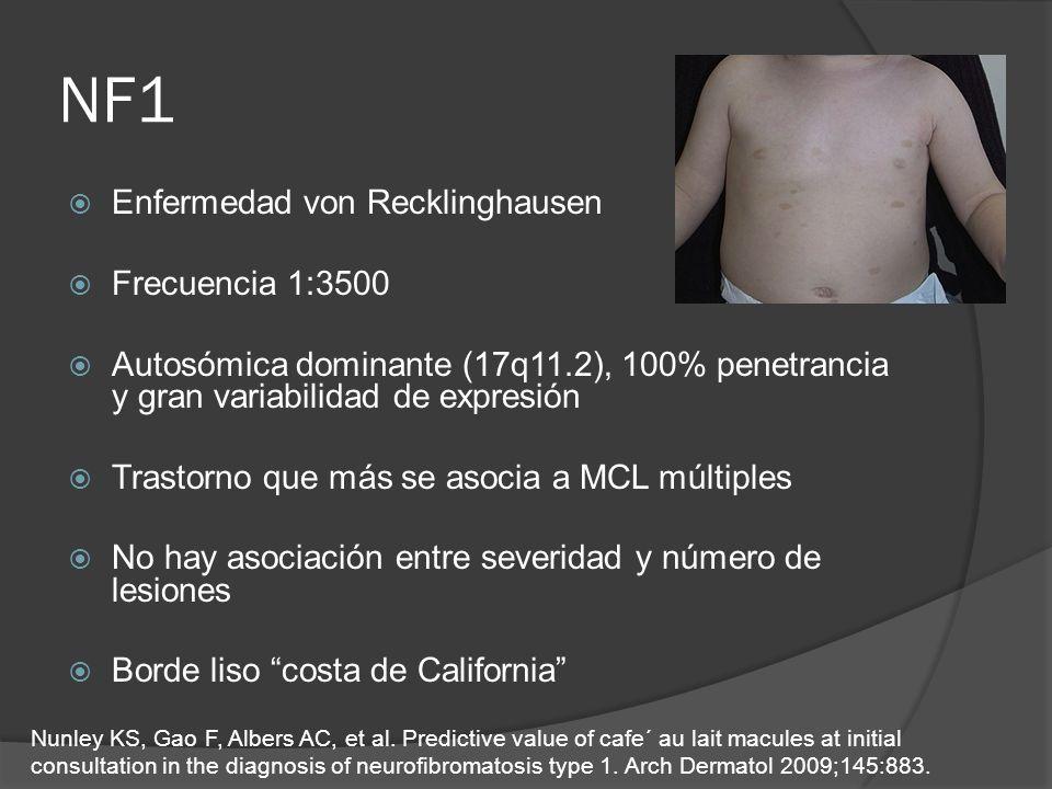 NF1 Enfermedad von Recklinghausen Frecuencia 1:3500 Autosómica dominante (17q11.2), 100% penetrancia y gran variabilidad de expresión Trastorno que má