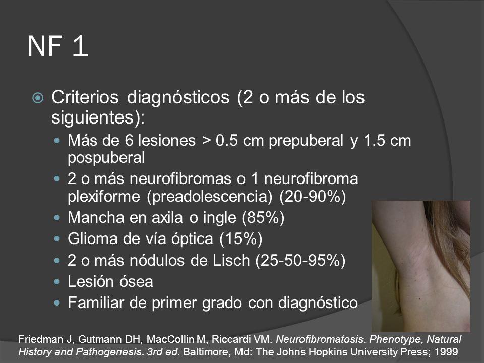 NF 1 Criterios diagnósticos (2 o más de los siguientes): Más de 6 lesiones > 0.5 cm prepuberal y 1.5 cm pospuberal 2 o más neurofibromas o 1 neurofibr