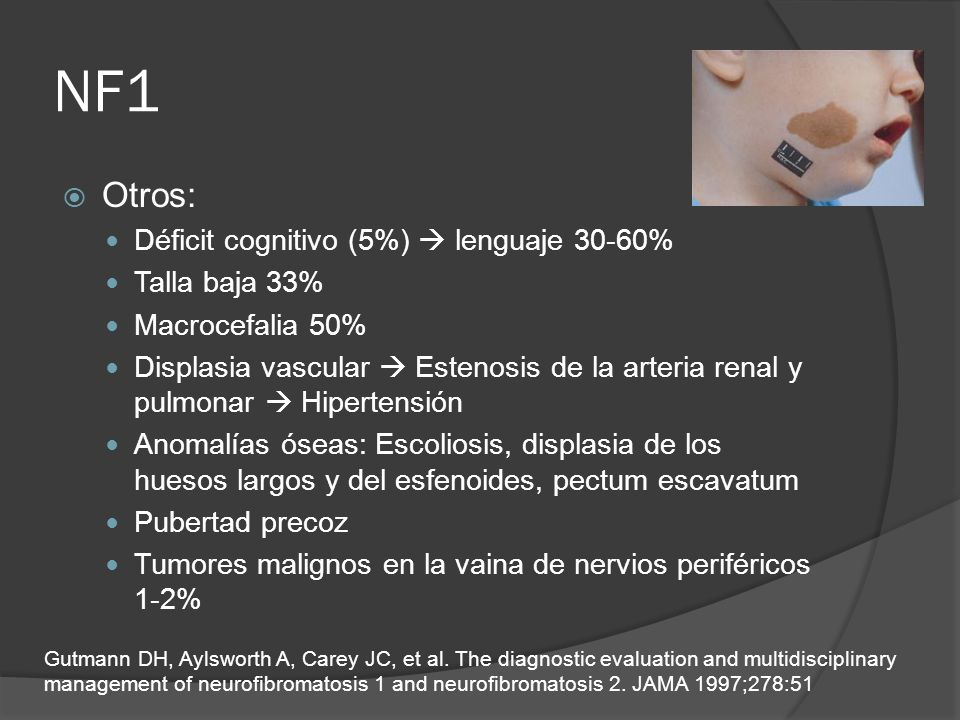 NF1 Otros: Déficit cognitivo (5%) lenguaje 30-60% Talla baja 33% Macrocefalia 50% Displasia vascular Estenosis de la arteria renal y pulmonar Hiperten