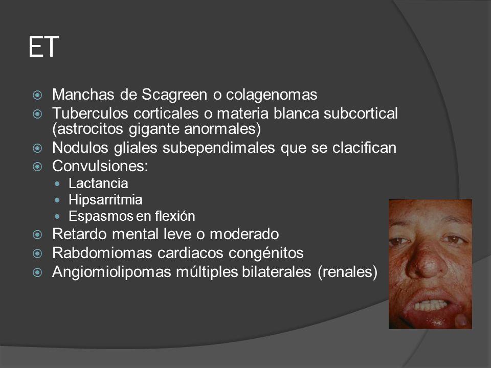 ET Manchas de Scagreen o colagenomas Tuberculos corticales o materia blanca subcortical (astrocitos gigante anormales) Nodulos gliales subependimales