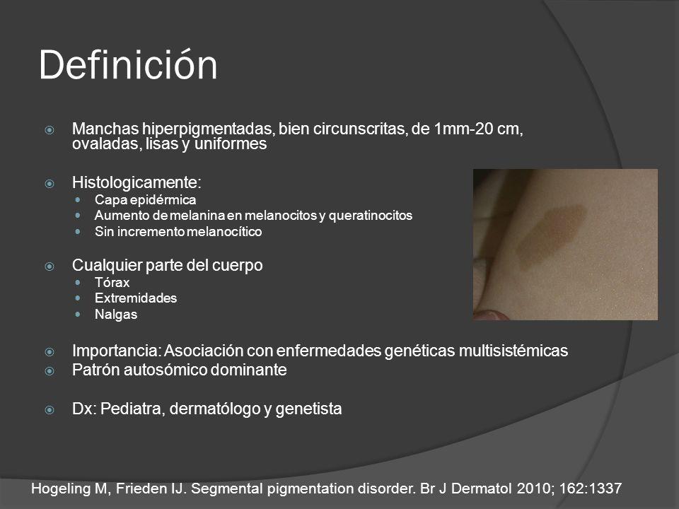 Definición Manchas hiperpigmentadas, bien circunscritas, de 1mm-20 cm, ovaladas, lisas y uniformes Histologicamente: Capa epidérmica Aumento de melani