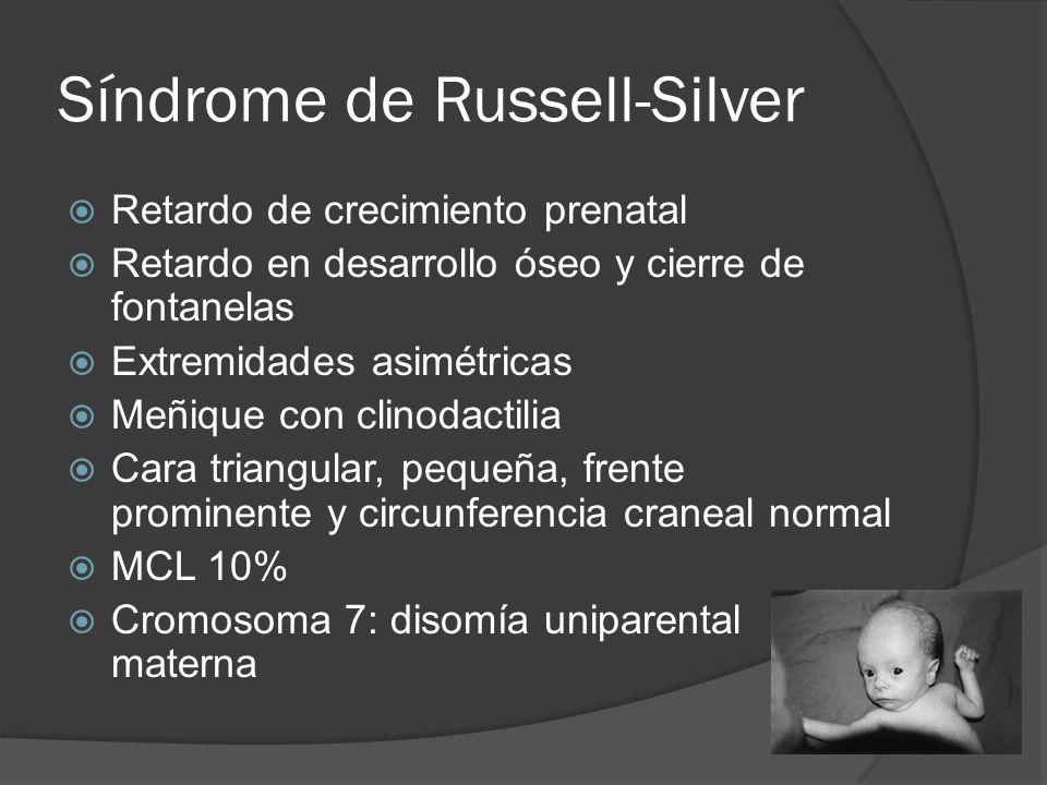 Síndrome de Russell-Silver Retardo de crecimiento prenatal Retardo en desarrollo óseo y cierre de fontanelas Extremidades asimétricas Meñique con clin