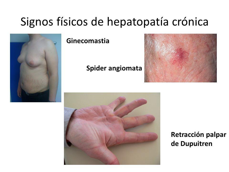 Signos físicos de hepatopatía crónica Ginecomastia Spider angiomata Retracción palpar de Dupuitren