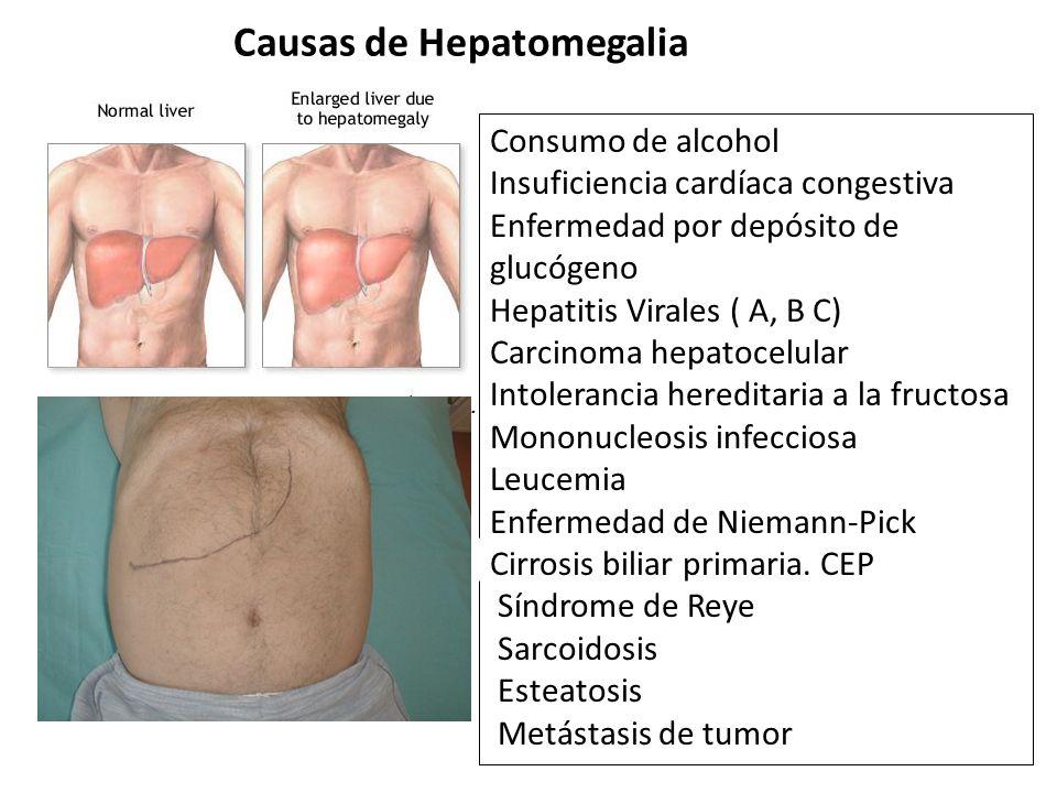 Causas de Hepatomegalia Consumo de alcohol Insuficiencia cardíaca congestiva Enfermedad por depósito de glucógeno Hepatitis Virales ( A, B C) Carcinom