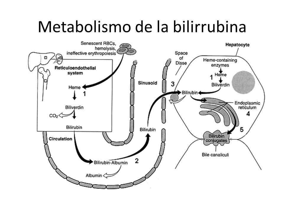 Mecanismos de Hiperbilirrubinemia.