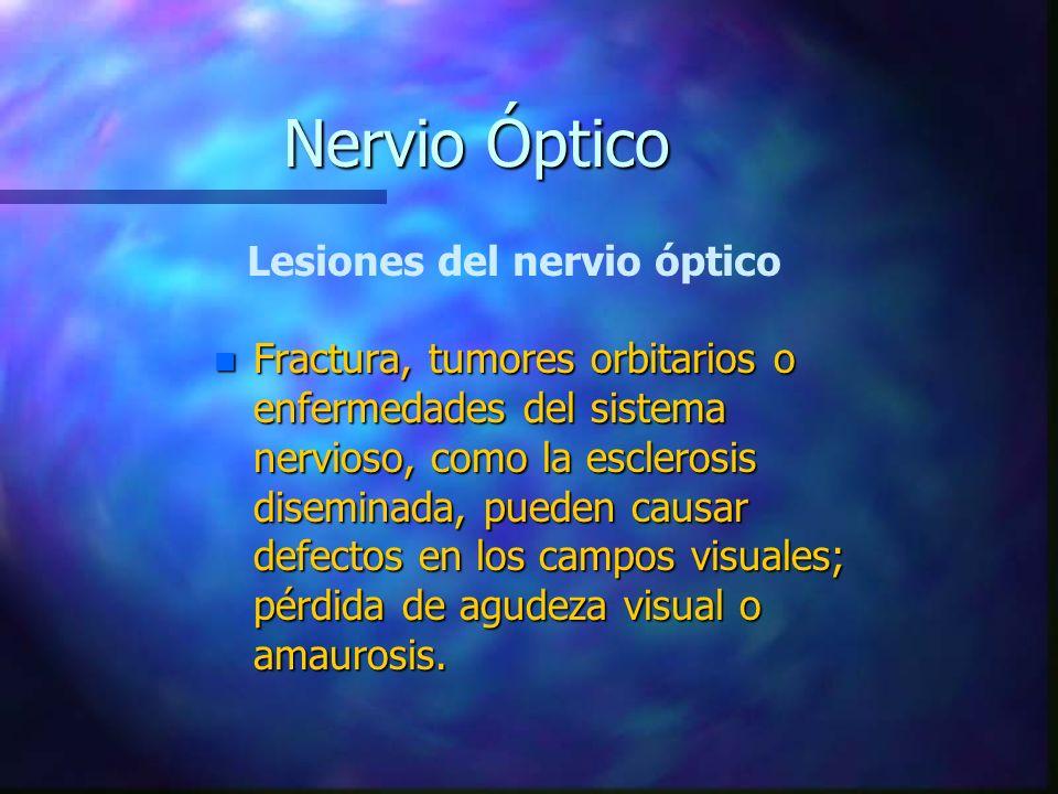 n Fractura, tumores orbitarios o enfermedades del sistema nervioso, como la esclerosis diseminada, pueden causar defectos en los campos visuales; pérd