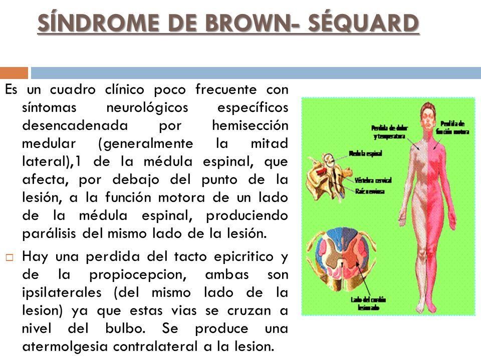 SÍNDROME DE BROWN- SÉQUARD Es un cuadro clínico poco frecuente con síntomas neurológicos específicos desencadenada por hemisección medular (generalmen