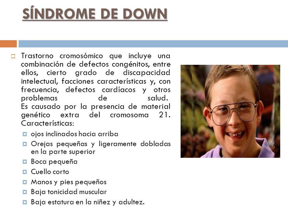 SÍNDROME DE DOWN Trastorno cromosómico que incluye una combinación de defectos congénitos, entre ellos, cierto grado de discapacidad intelectual, facc
