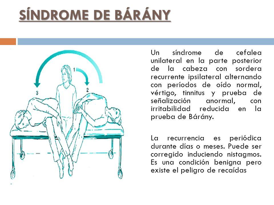 SÍNDROME DE BÁRÁNY Un síndrome de cefalea unilateral en la parte posterior de la cabeza con sordera recurrente ipsilateral alternando con períodos de