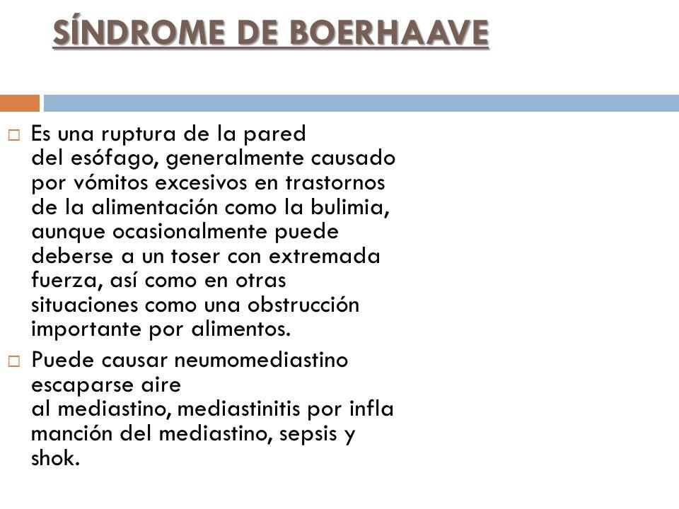 SÍNDROME DE BOERHAAVE Es una ruptura de la pared del esófago, generalmente causado por vómitos excesivos en trastornos de la alimentación como la buli