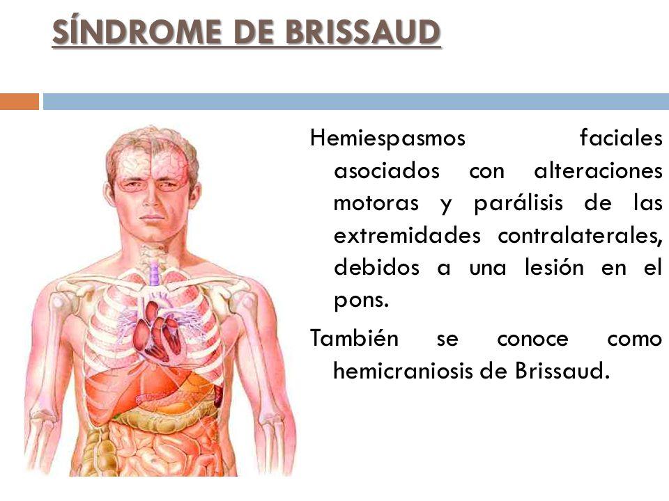 SÍNDROME DE BRISSAUD Hemiespasmos faciales asociados con alteraciones motoras y parálisis de las extremidades contralaterales, debidos a una lesión en