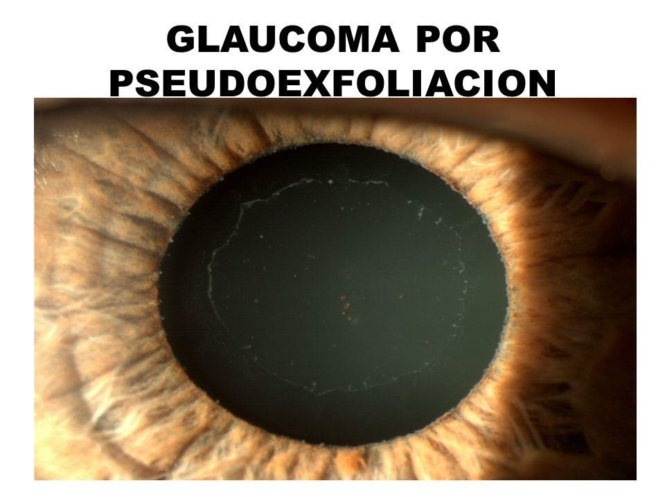 GLAUCOMA POR PSEUDOEXFOLIACION