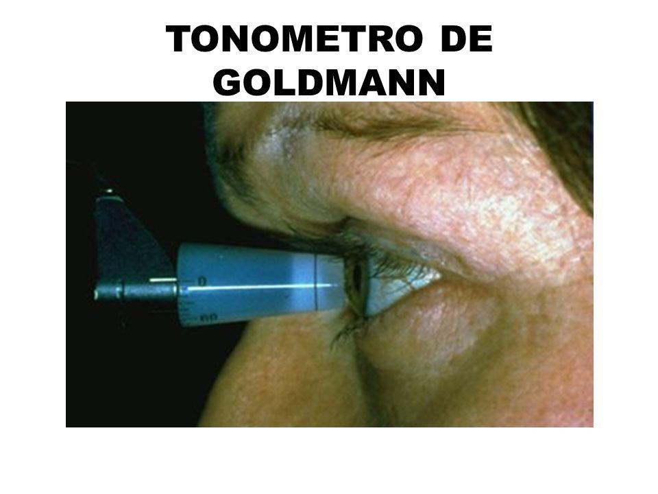 TONOMETRO DE GOLDMANN