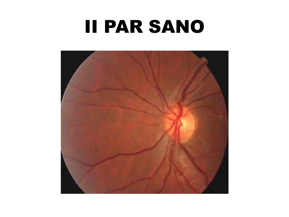 II PAR SANO