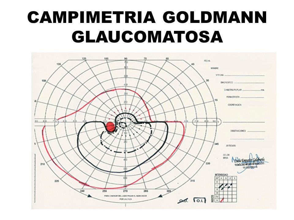 CAMPIMETRIA GOLDMANN GLAUCOMATOSA