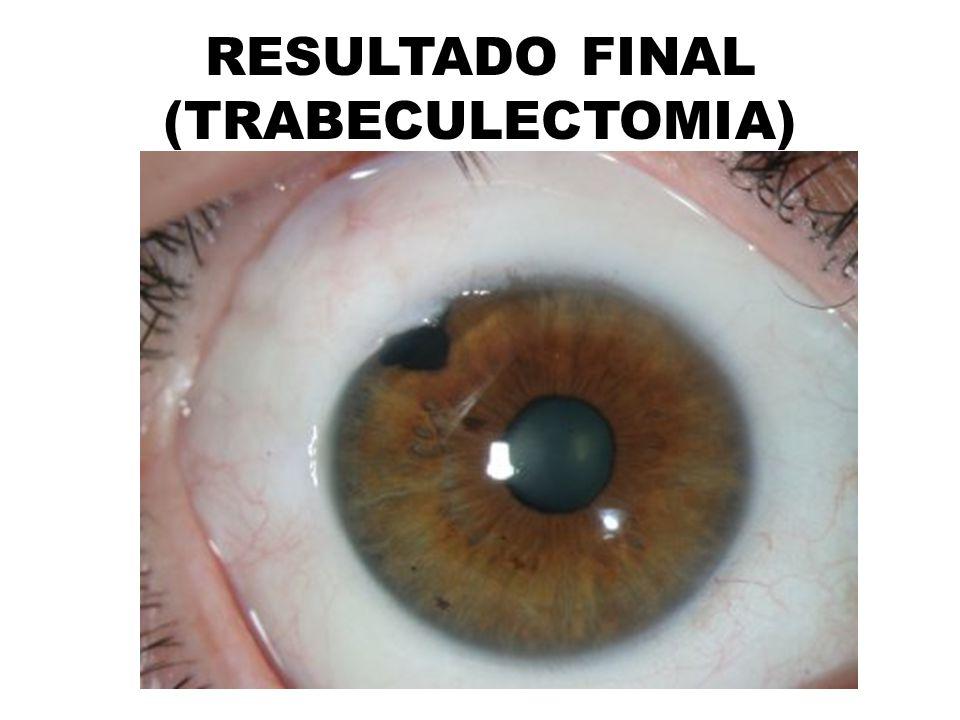 RESULTADO FINAL (TRABECULECTOMIA)