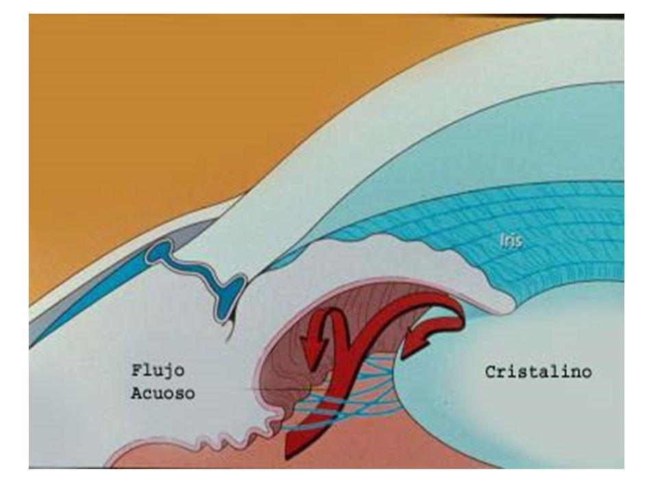 TIPOS DE GLAUCOMA - PRIMARIOS : -ANGULO ABIERTO -ANGULO CERRADO SECUNDARIOS: -DEBIDO AL CRISTALINO -INFLAMATORIOS -HEMORRAGICOS -PSEUDOEXFOLIATIVOS -PIGMENTARIO -ETC…