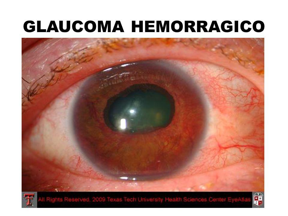 GLAUCOMA HEMORRAGICO