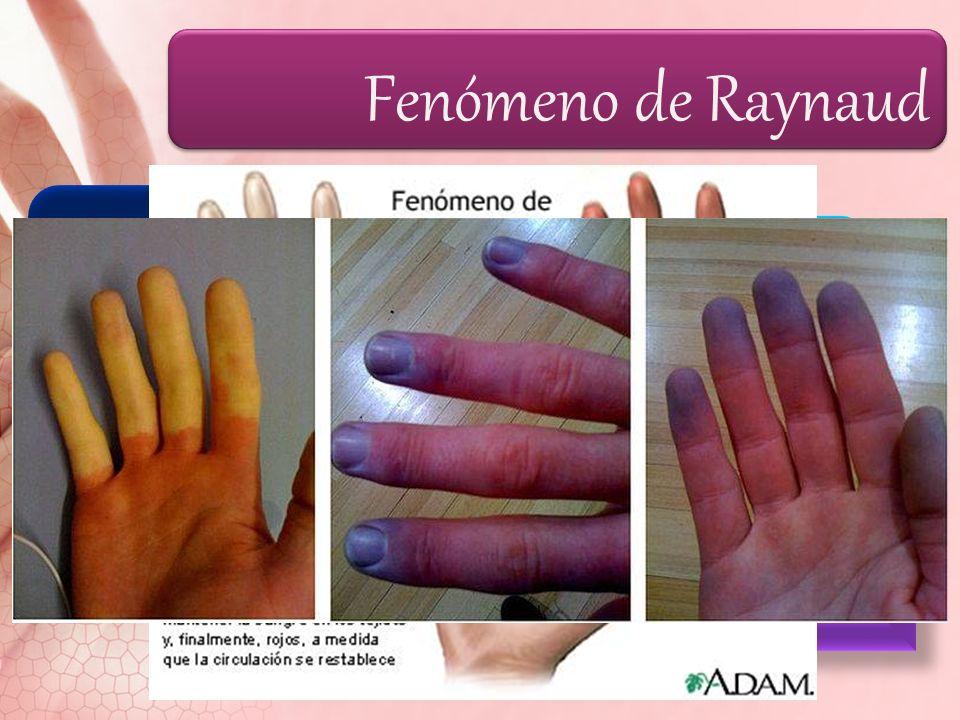Fenómeno de Raynaud Fenómeno de Raynaud y tumefacción de dedos VC episódica de las pequeñas arterias y arteriolas de dedos de manos y pies; a veces, n