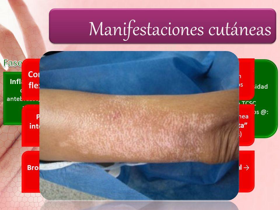 Manifestaciones cutáneas Inflamación de dedos de manos (s-m); antebrazos, pies, cara, MI relativamente respetados. Alteraciones de piel en miembros: i