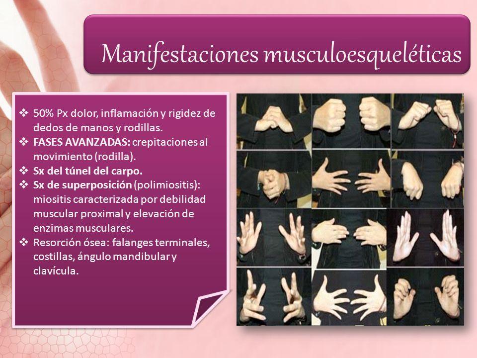 Manifestaciones musculoesqueléticas 50% Px dolor, inflamación y rigidez de dedos de manos y rodillas. FASES AVANZADAS: crepitaciones al movimiento (ro