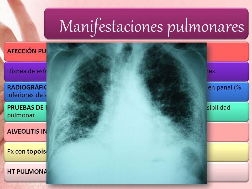 Manifestaciones pulmonares AFECCIÓN PULMONAR: PxDisnea de esfuerzo, tos seca no productiva; bases pulmonares: estertores. RADIOGRÁFICAMENTE: fibrosis