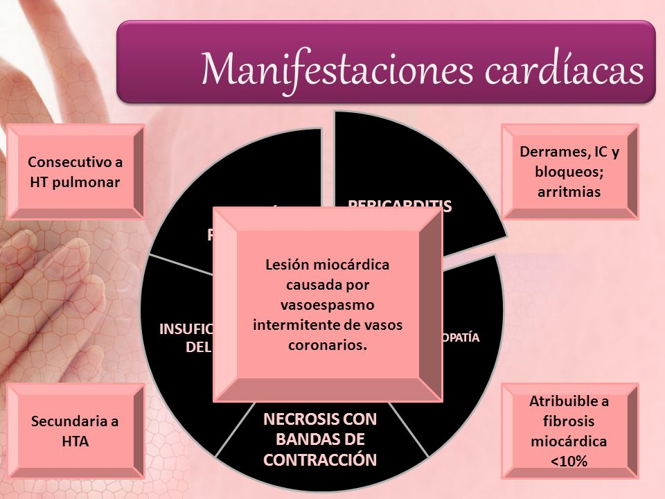 Manifestaciones cardíacas PERICARDITIS MIOCARDIOPATÍA NECROSIS CON BANDAS DE CONTRACCIÓN INSUFICIENCIA DEL V.I. CORAZÓN PULMONAR Derrames, IC y bloque